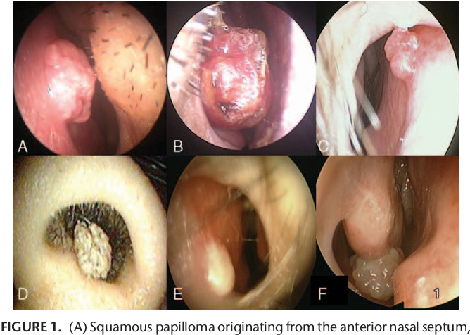 papilloma of the nasal septum