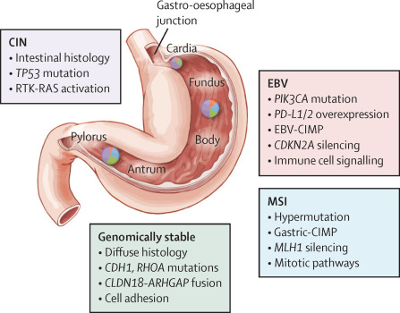 gastric cancer location)