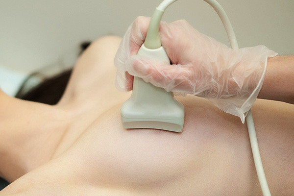 papilom intraductal tratament)