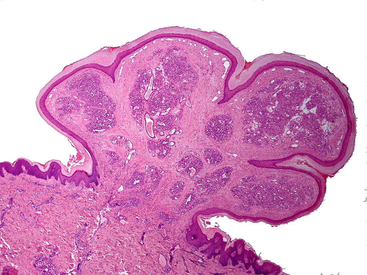 papilloma of skin icd 10