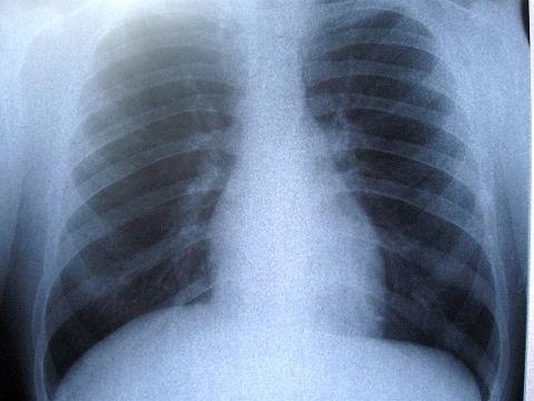 cancer pulmonar viena