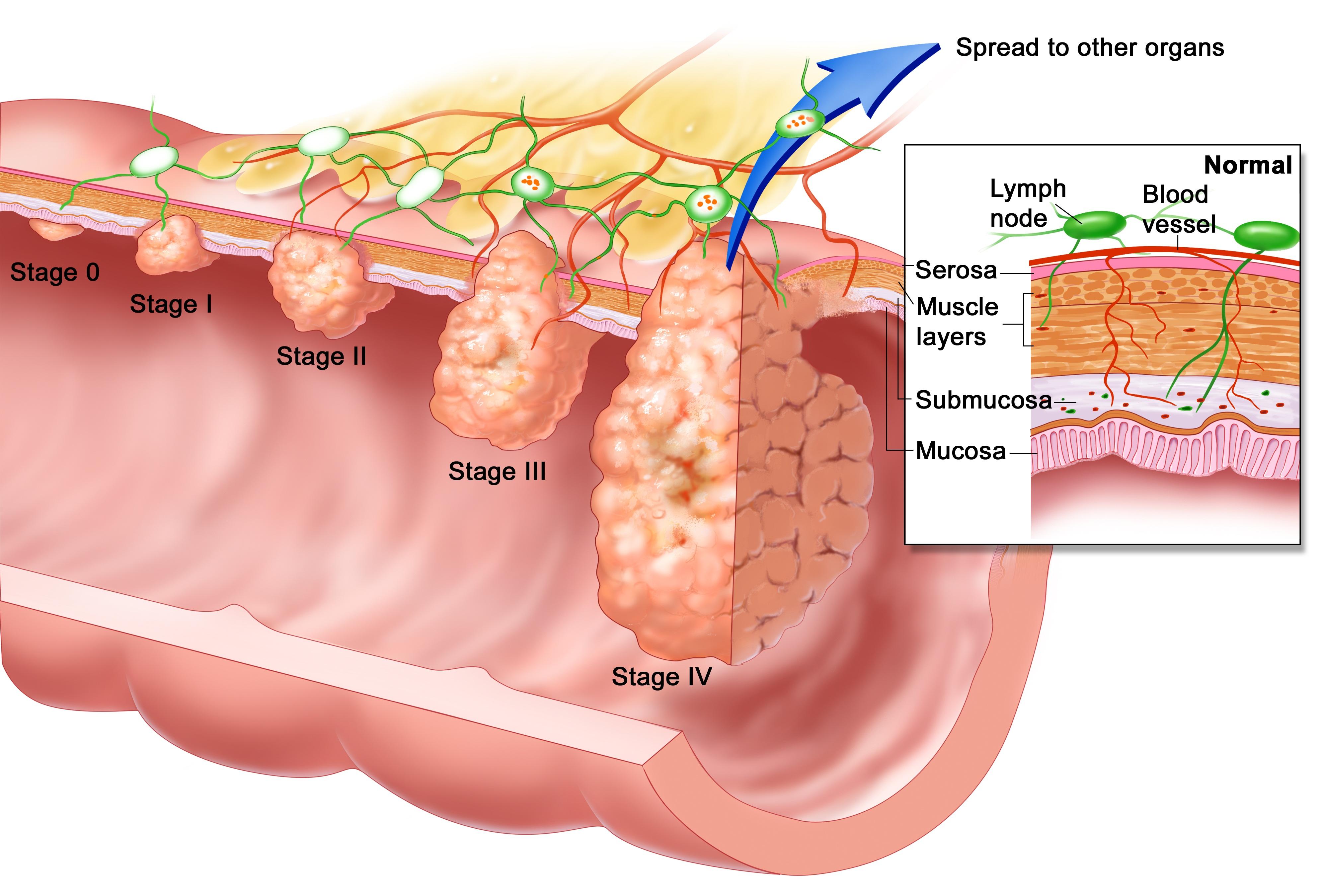 Cancerul anal