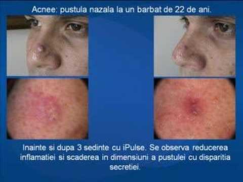 detoxifiant acnee)