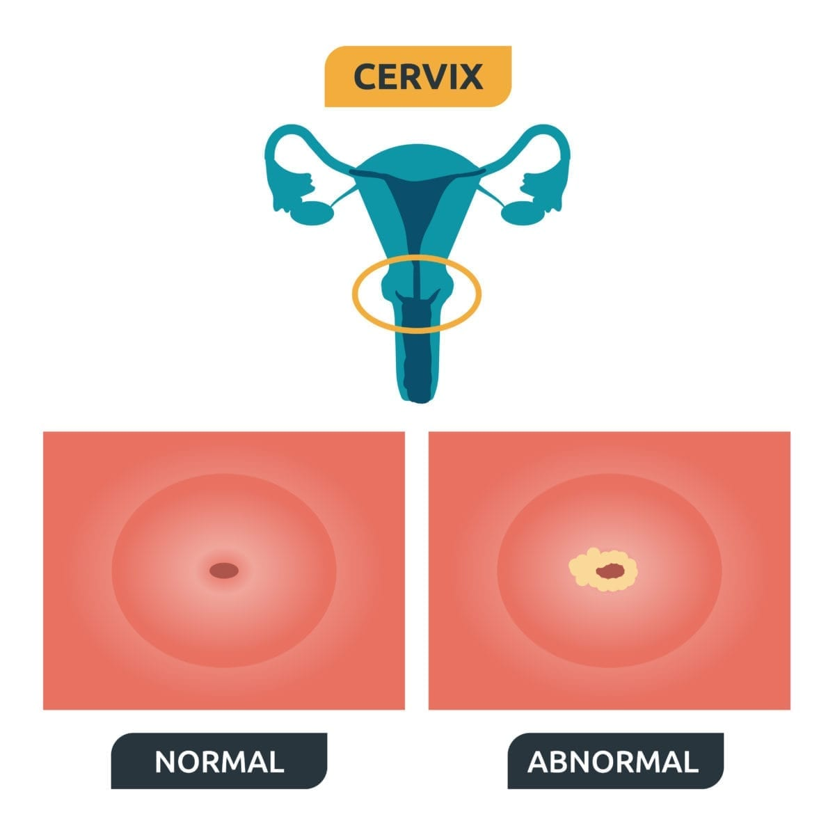 does precancerous cells mean hpv)