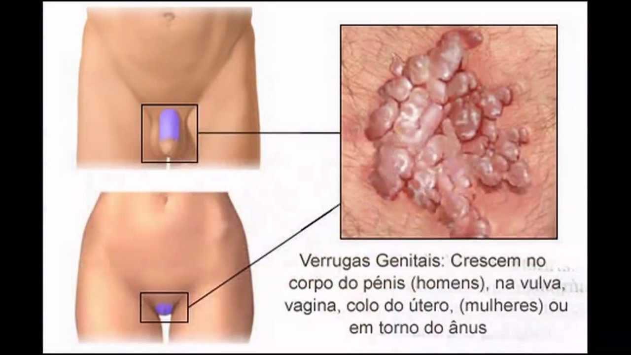 hpv genital no homem)