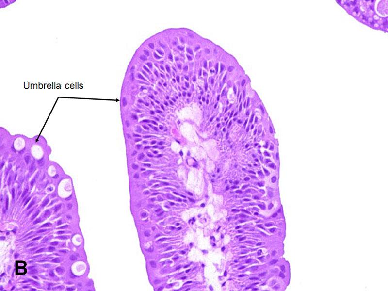 urinary bladder squamous papilloma