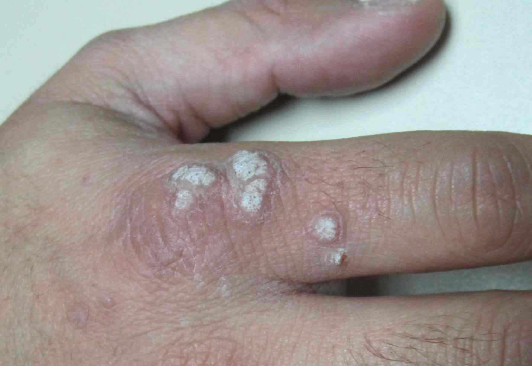 papiloma picor ano papillomatosis skin tags
