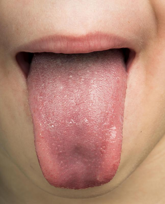 warts on tongue and sore throat