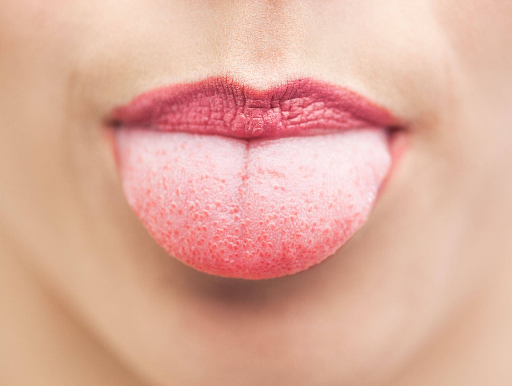 inflammation of tongue papillae)