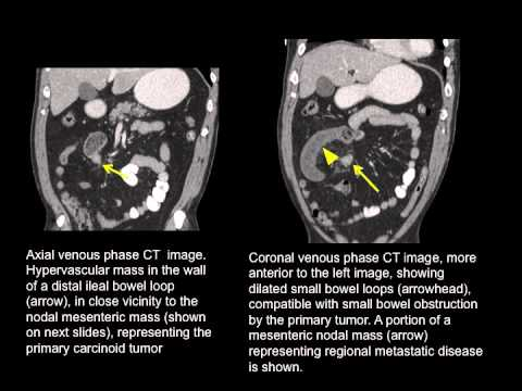 neuroendocrine cancer of small intestine