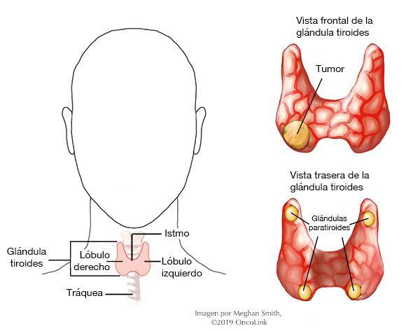 papiloma en tiroides)