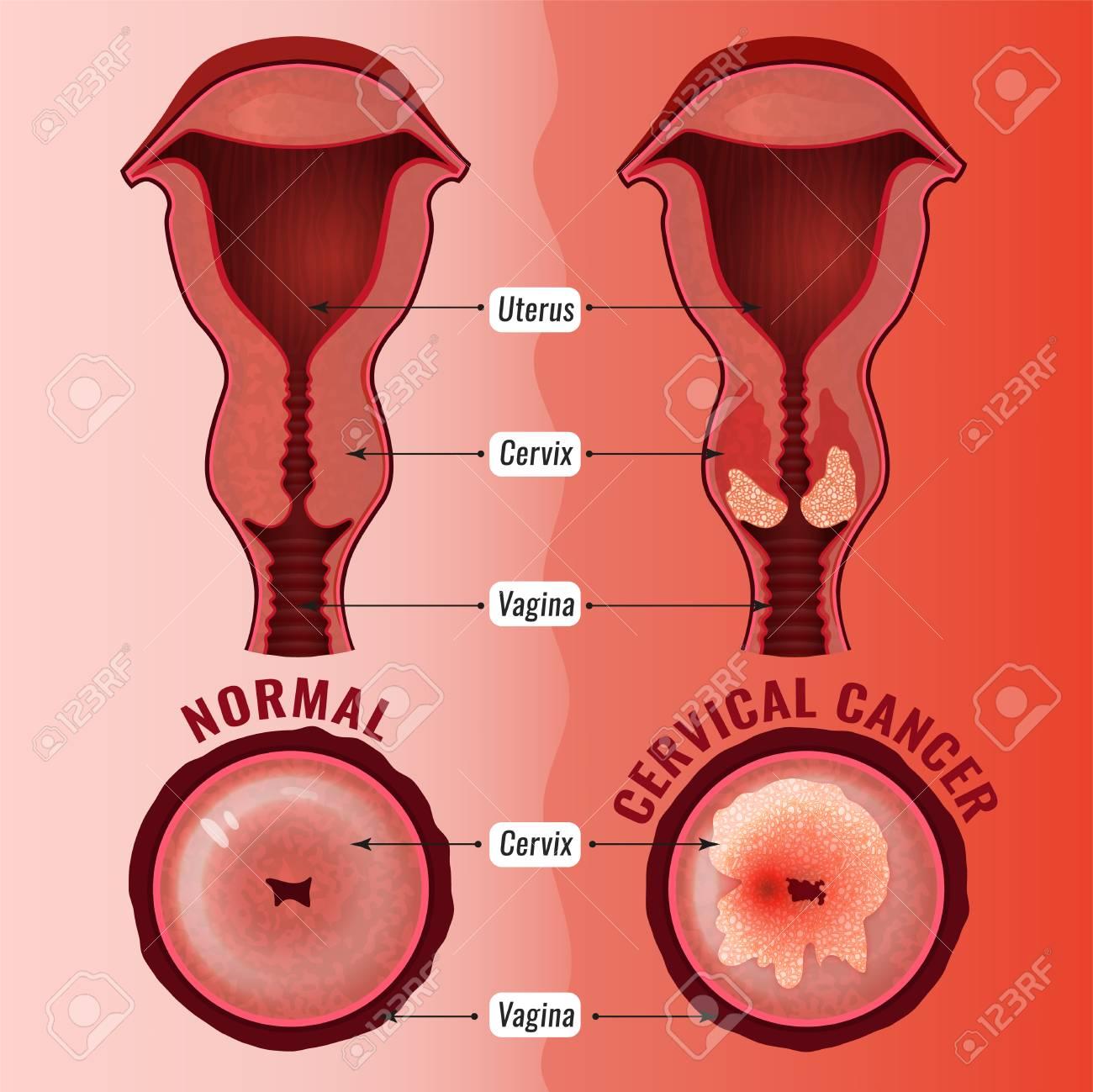 cancer cuello uter)