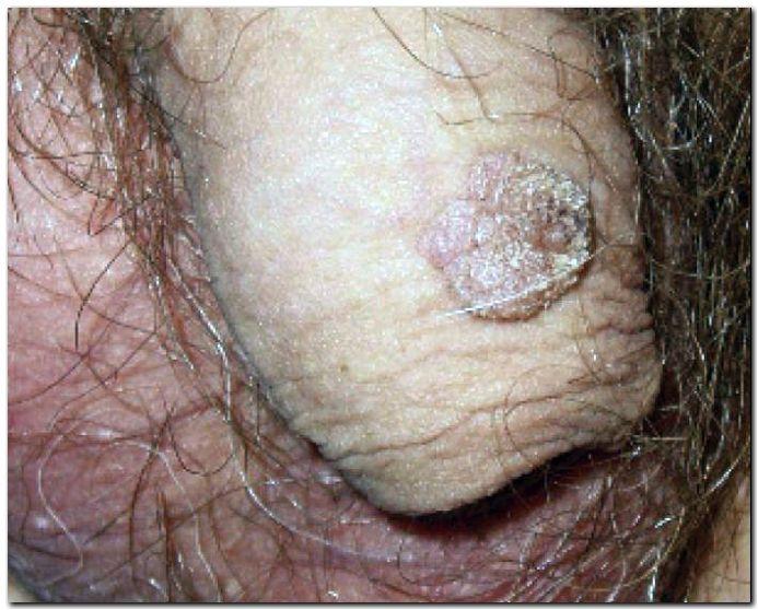hpv virus muskarci
