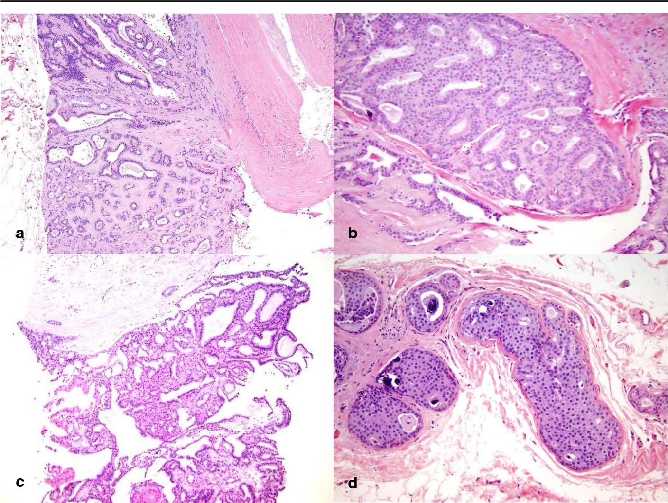 intraductal papilloma carcinoma in situ