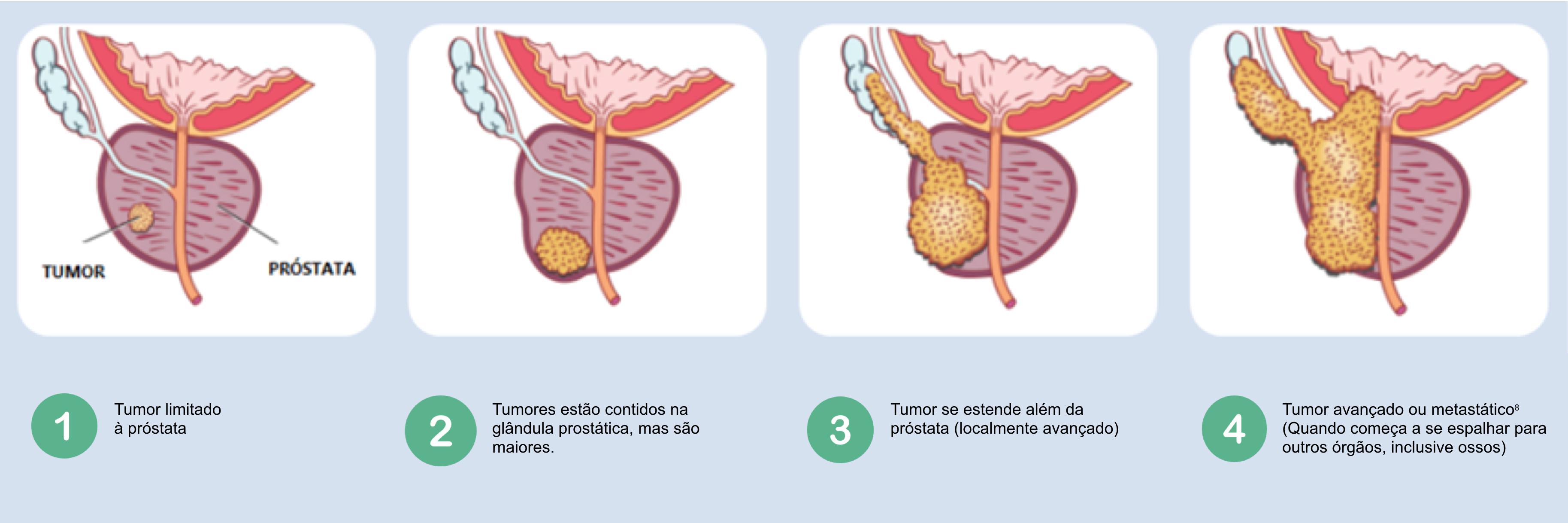 cancerul de prostata in romania)