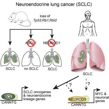 neuroendocrine cancer in lung)