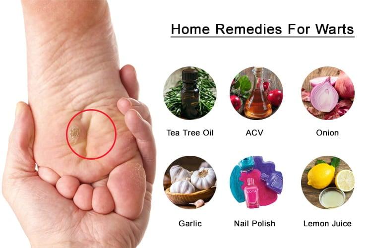natural treatment for papilloma)