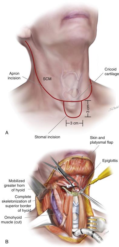hpv neck mass)