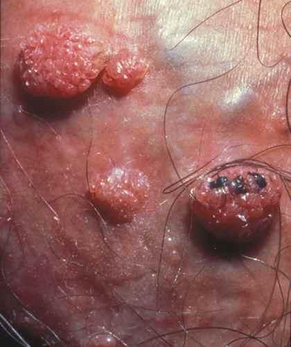 papillomavirus mycose)