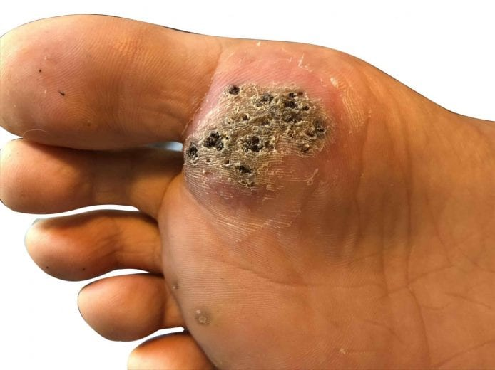 wart on foot with black spots)