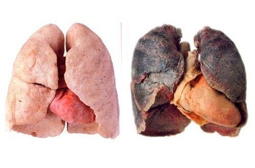 detoxifiere plamani dupa fumat)