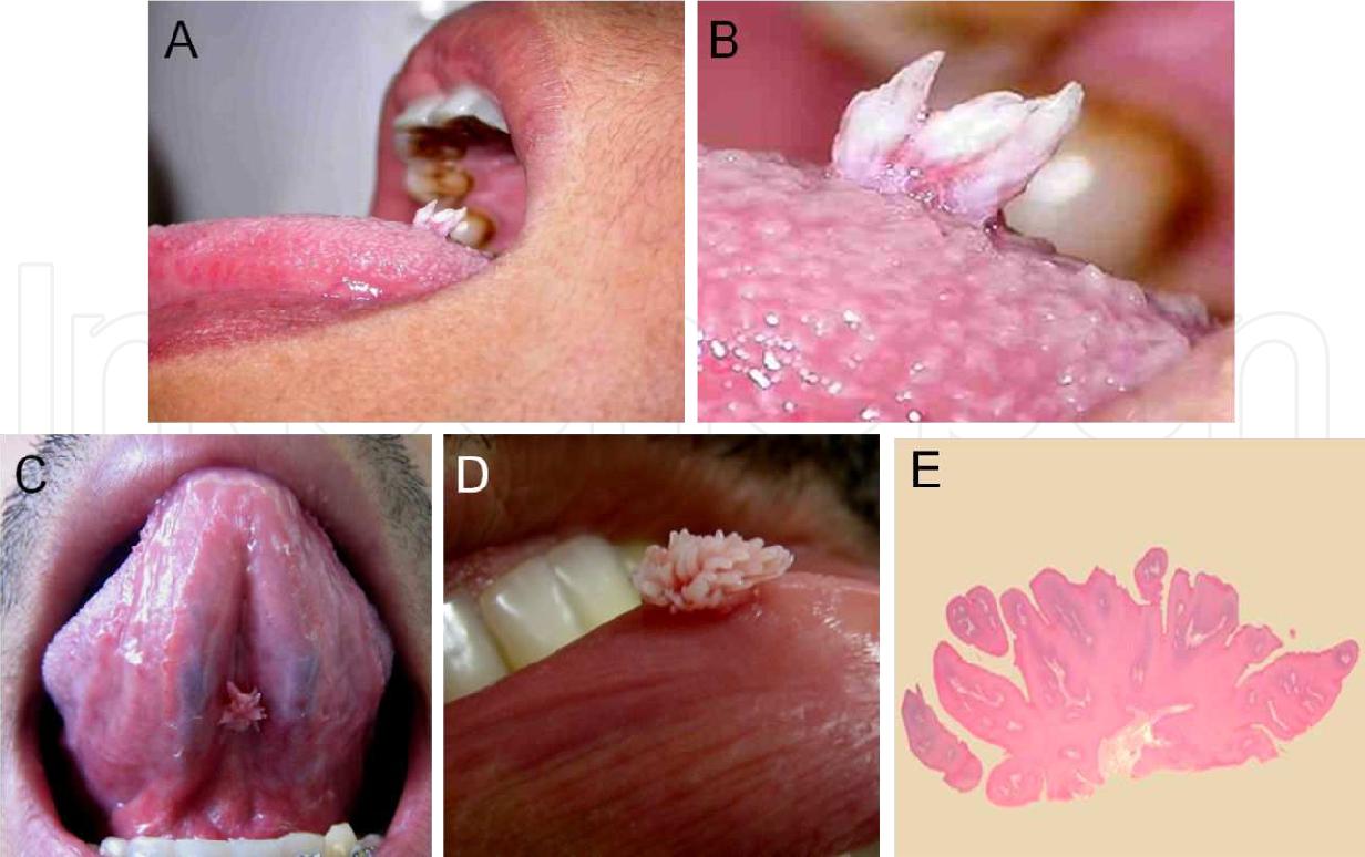 squamous papilloma lesion