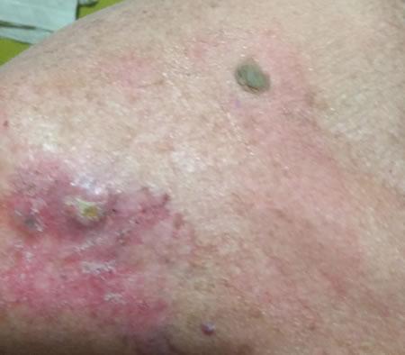 benign cancer precancerous virus del papiloma humano sintomas y causas
