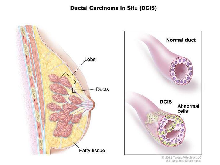 papilloma breast cancer risk)