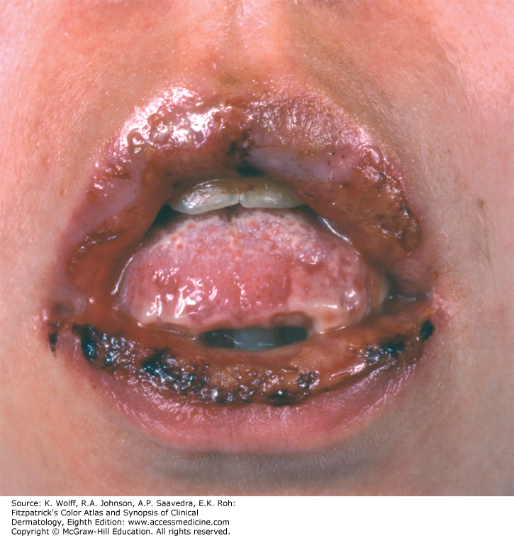 papilloma cheek icd 10)