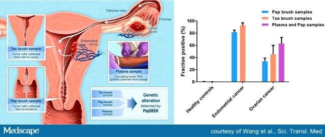 Testarea pentru cancerul ovarian si endometrial | Regina Maria