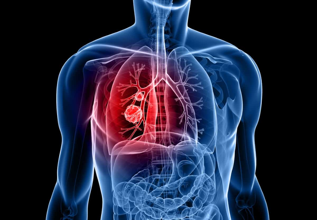 metastatic cancer lung treatment)