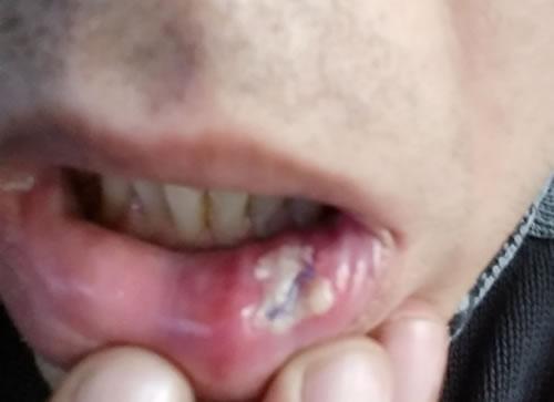 papilom dermatologie)