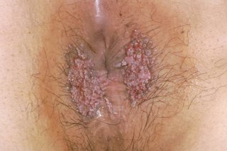 hpv female genital warts