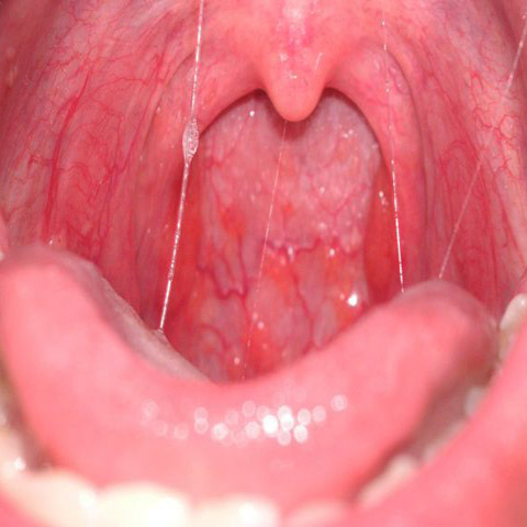 human papillomavirus in throat)