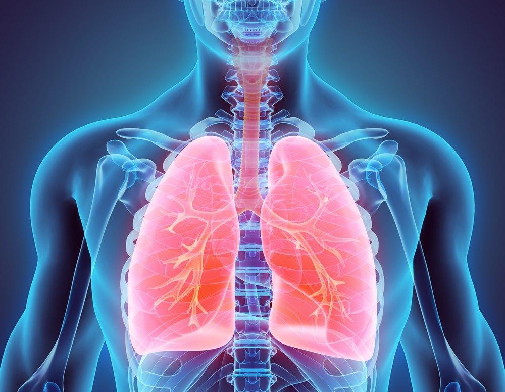 Cancer Pulmonar (cancer la plamani) - Simptome & Tratament | asspub.ro