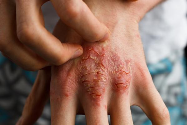 cancer de piele maini)