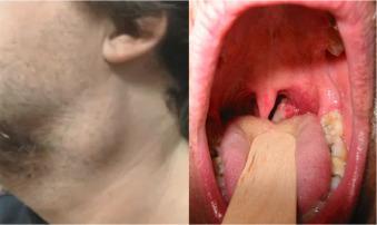 hpv e cancer de orofaringe)