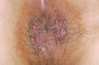 HPV Genital / Warts Treatment & Medication
