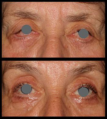 eyelid papilloma nhs