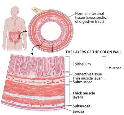 cancer colon t1