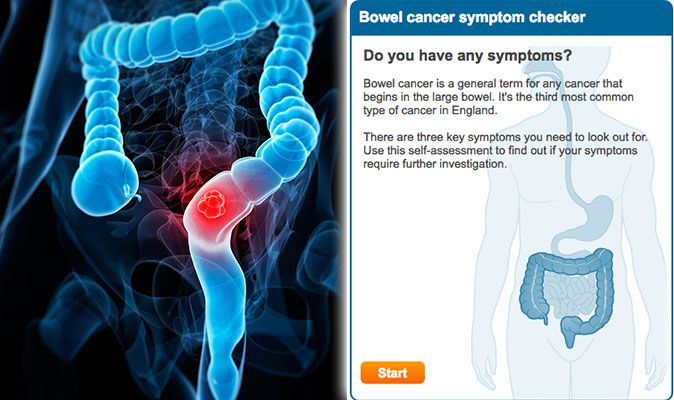 cancer colon nhs testicular cancer of the lymph nodes