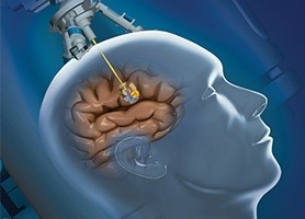 cancer la cap simptome)