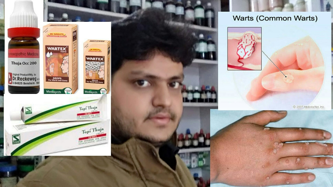 warts cure homeopathy