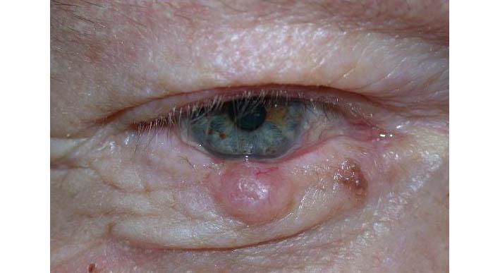 papilloma eye removal