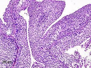 papilloma urothelial histopathology)