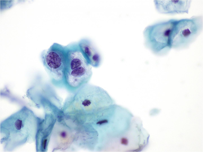 penyebab papiloma di leher papiloma de uvula cie 10