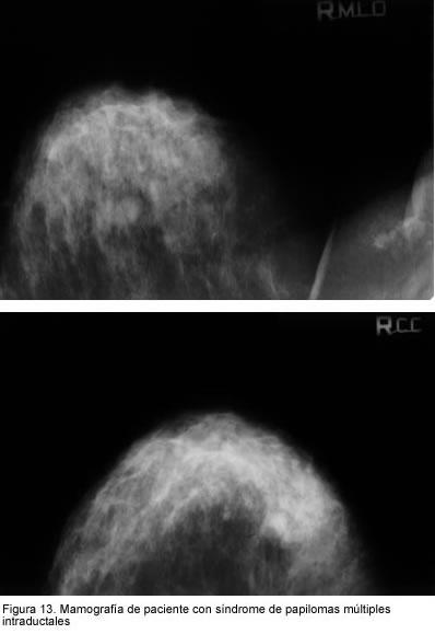 Sonoelastografie Mamara (elastografie) - Donna Medical Center