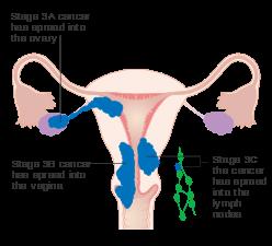 endometrial cancer lymph node metastasis