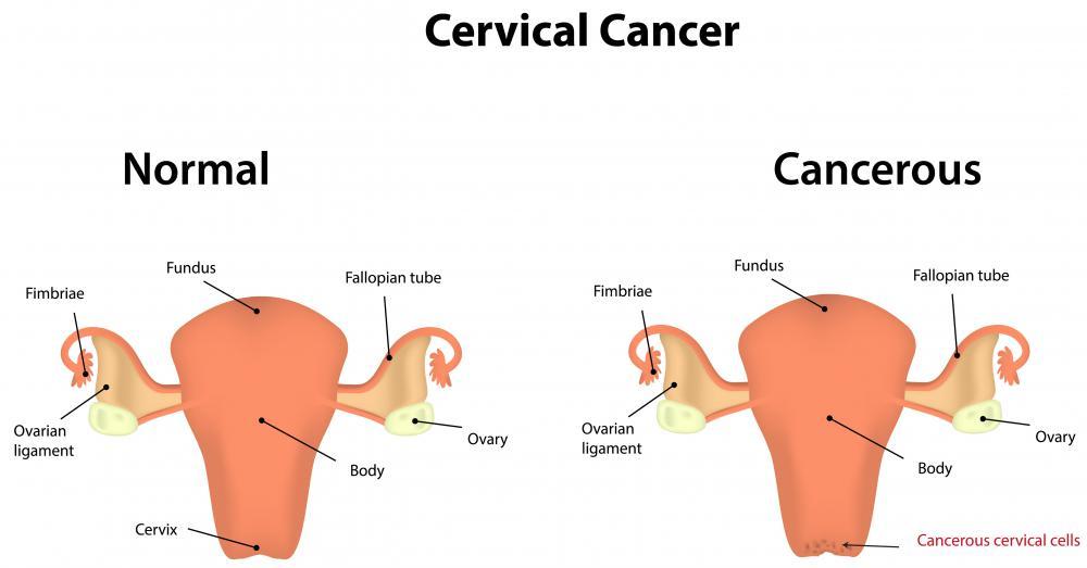 Cancerul de col uterin: cand este contraindicata conizatia