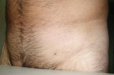 hpv small genital warts)